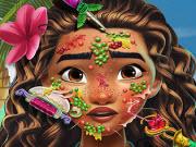 Moana Skin Doctor
